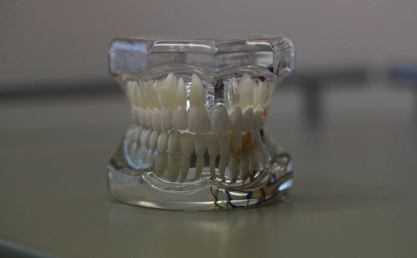 Złe podejście odżywiania się to większe braki w zębach a dodatkowo ich zgubę